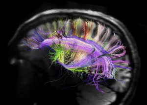 http://www.wired.com/images_blogs/wiredscience/2012/03/rainbow-brain-map-science-aaas.jpg